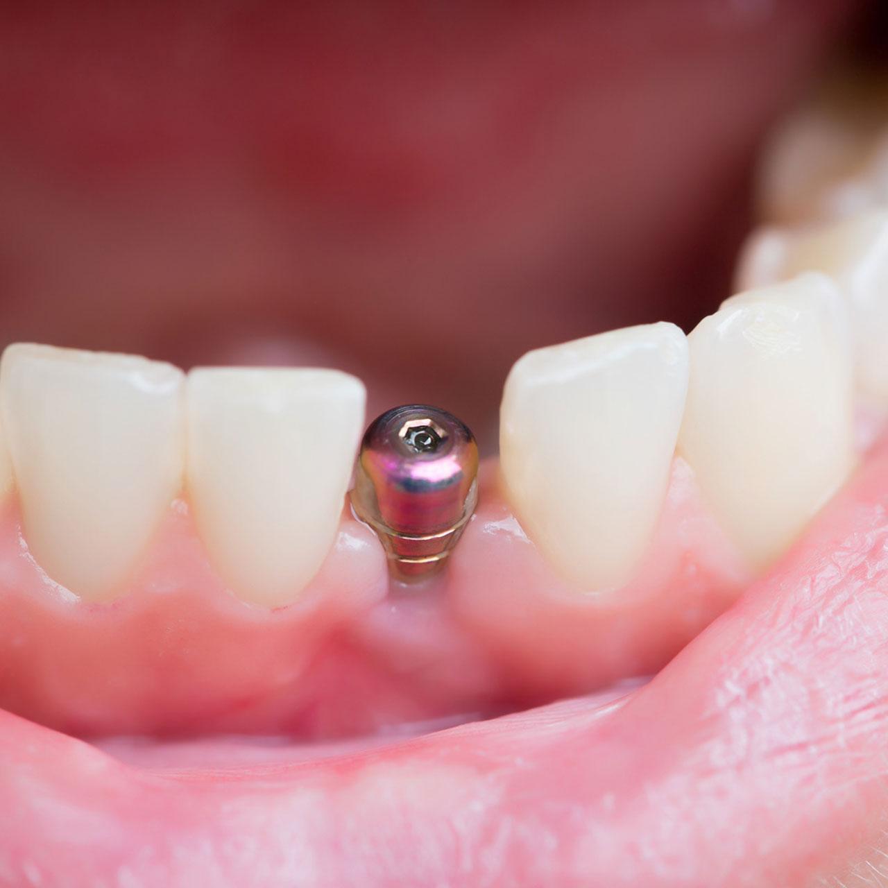 https://medentinadigital.rs/wp-content/uploads/2021/05/implantologija.jpg