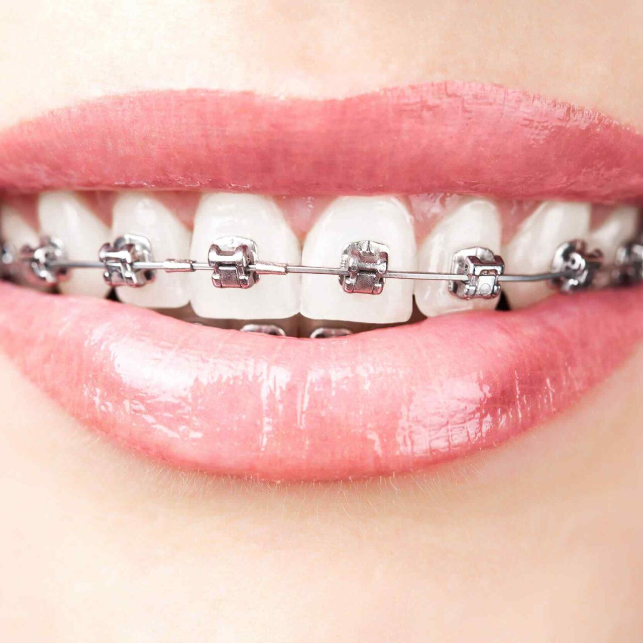 https://medentinadigital.rs/wp-content/uploads/2021/05/ortodoncija.jpg